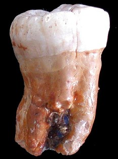 40,000-year-old tooth provides evidence on Neanderthal movements