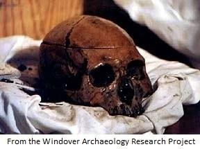 Windover Skull